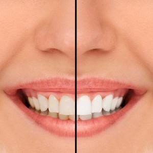 yellow and white teeth